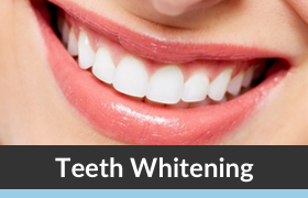 Teeth Whitening with Dr. Silverman